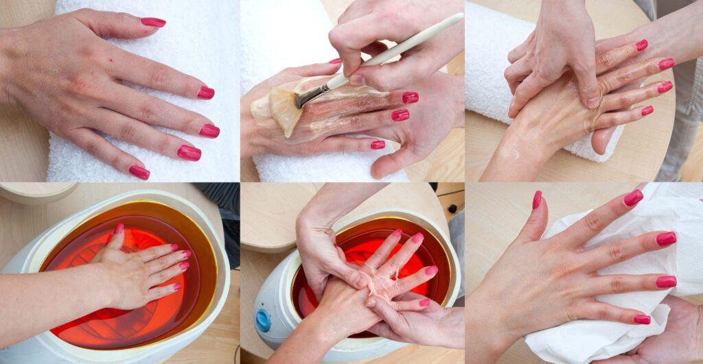 Парафинотерапия кожи рук