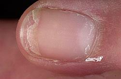 Болезнь ногтя - Онихошизис