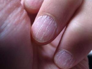 Гапалонихия - болезнь ногтевой пластины