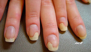Болезнь ногтей - Онихолизис