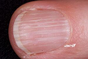 Онихорексис заболевание ногтей