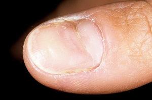 Дистрофия ногтей Борозды Бо