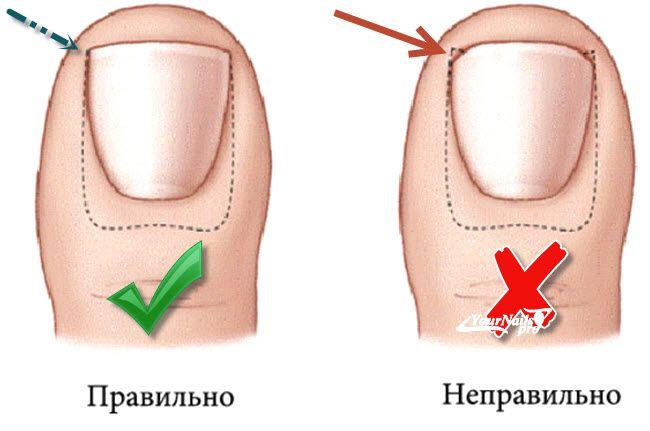 Как правильно подстричь ногти новорожденному