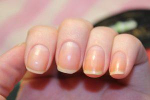 Желтеют ногти после шеллка