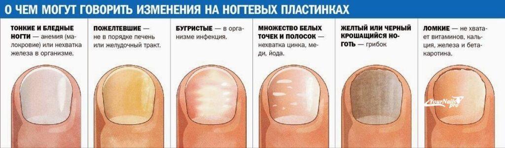Диагностирование болезни - деформация ногтей