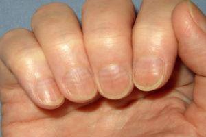 Неровные ногти - болезни