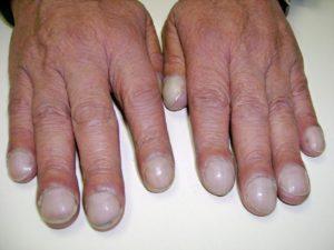 Больные ногти - пора к врачу