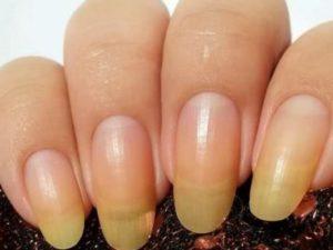 Желтизна ногтевой пластины