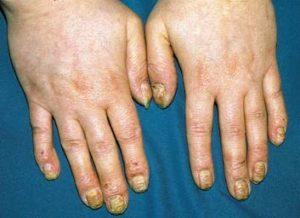 Грибок ногтевой пластины