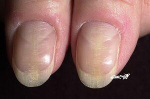 Утолщение и деформация ногтей