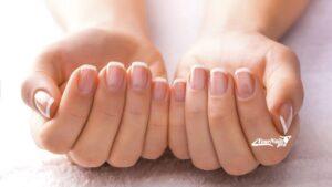 Расслоения ногтей