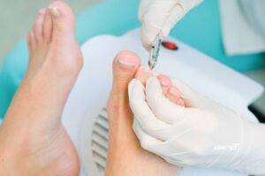 Вросший ноготь хирургическое лечение