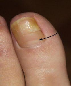 Желтые ногти у взрослых
